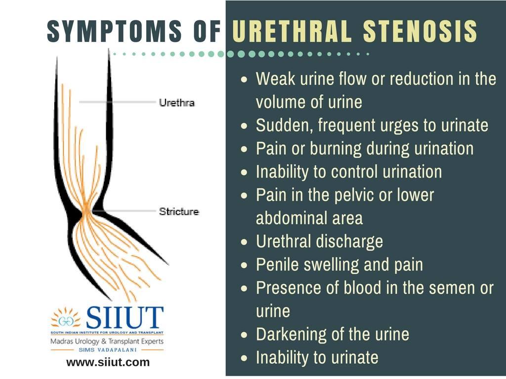urethral stenosis symptoms