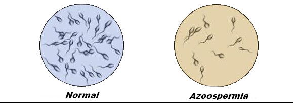 nizkaya-kontsentratsiya-spermi