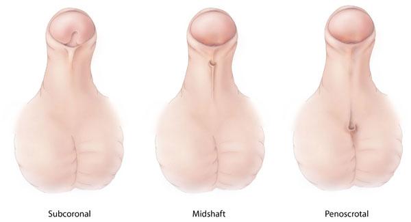 Types of Hypospadias